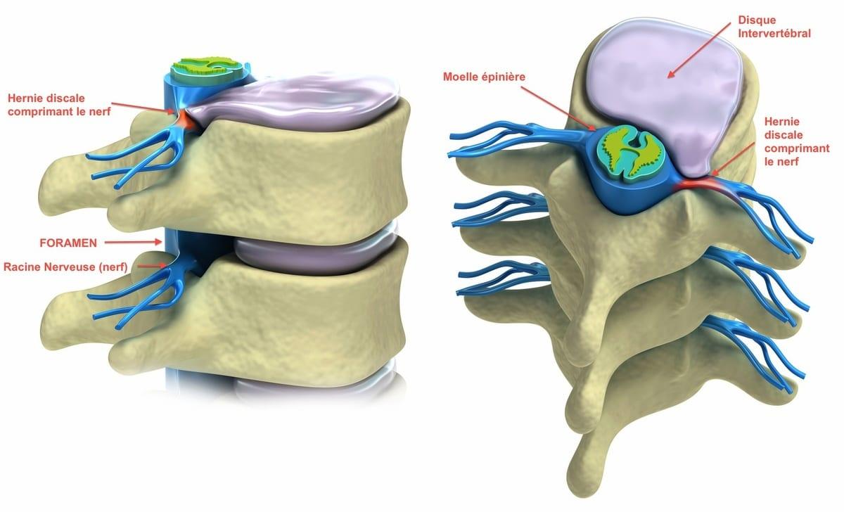 Des solutions pour l'hernie discale
